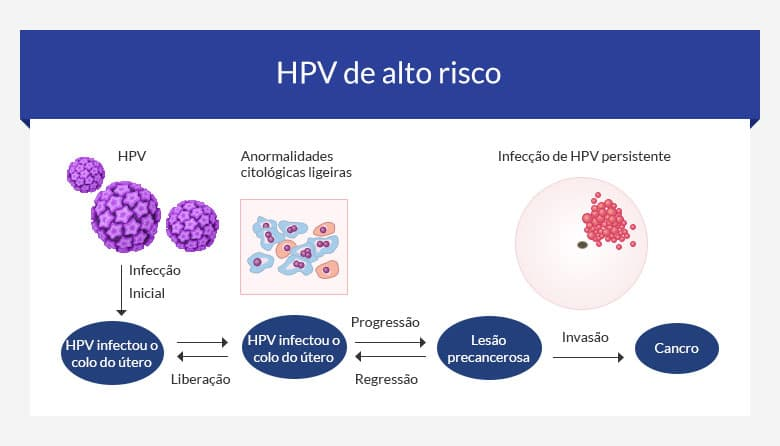 cancro cervical e HPV