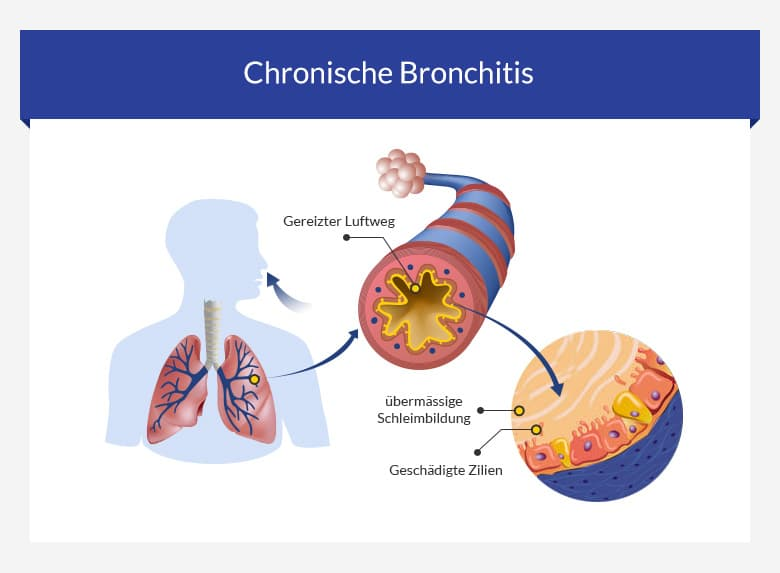chronishe bronchitis