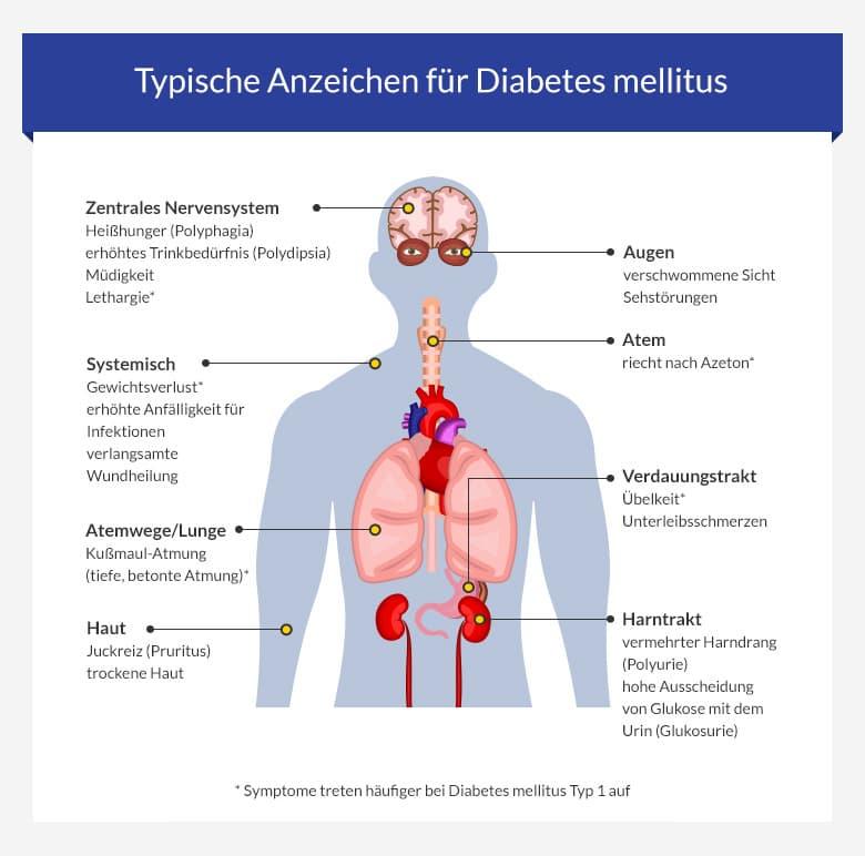 Diabetes mellitus typ 2 anzeichen