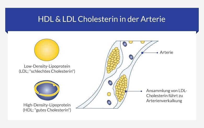 Hoher Cholesterinspiegel - Cholesterin senken - euroClinix