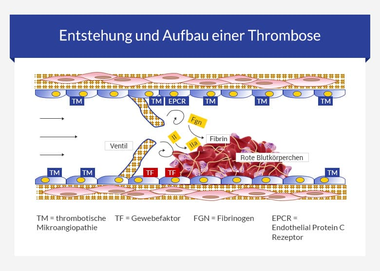 Thrombosen-Entstehung