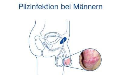 Penis pilz am Pilzinfektion Mann