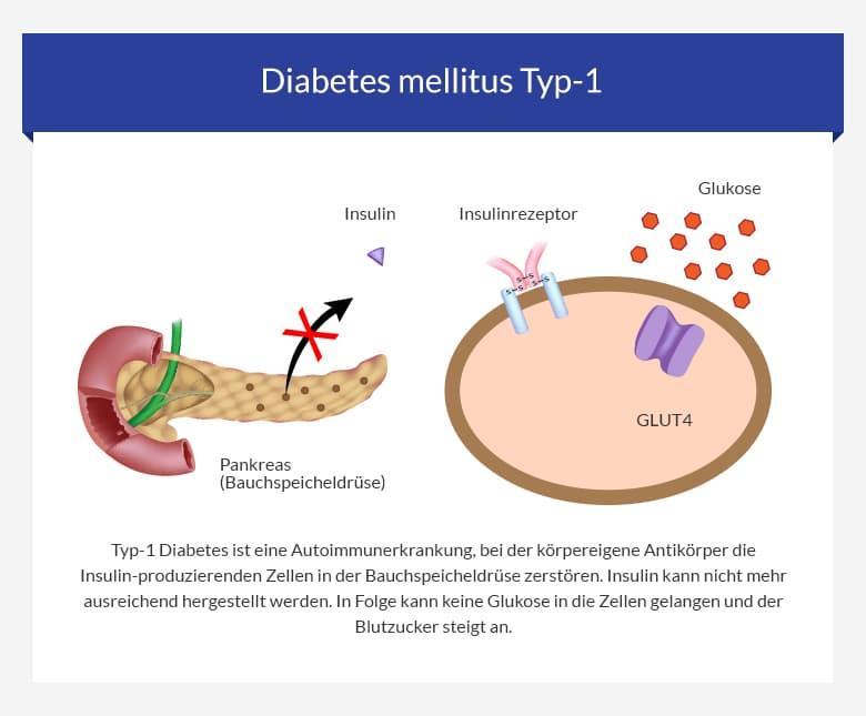 Ist diabetes typ 2 eine autoimmunerkrankung