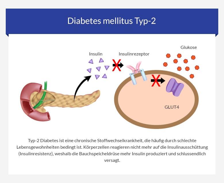Behinderungsgrad bei diabetes mellitus typ 2