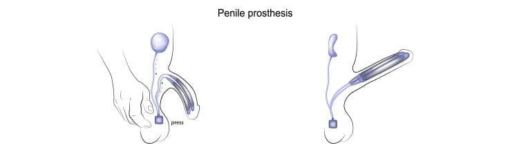 tabletki na utrzymanie erekcji na małym penisie