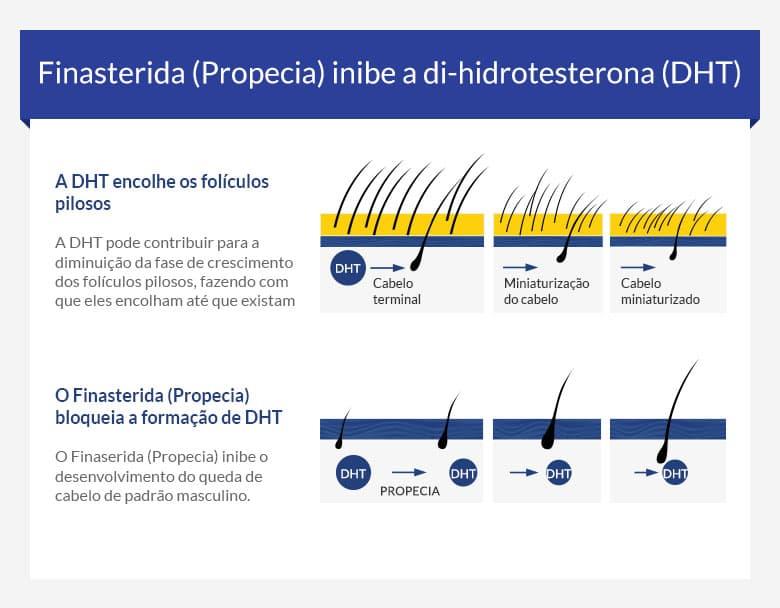 Comprar Finasterida 1mg Propecia Generico Online Portugal Receita Medica Incluida