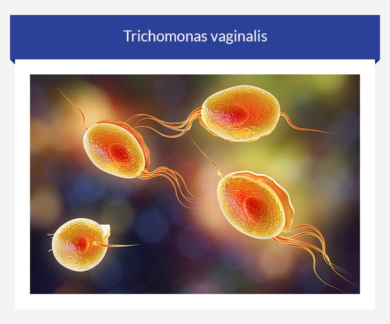 trichomonas-vaginalis