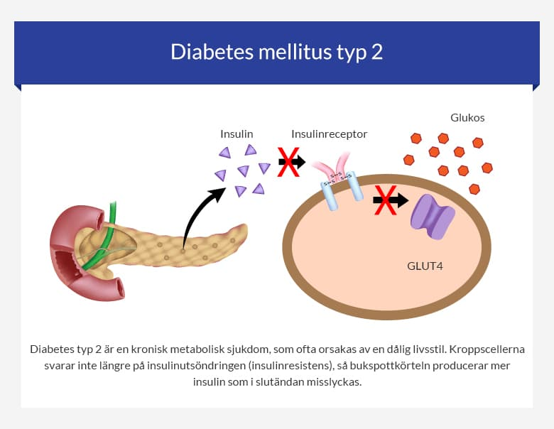 Diabetes mellitus typ 2