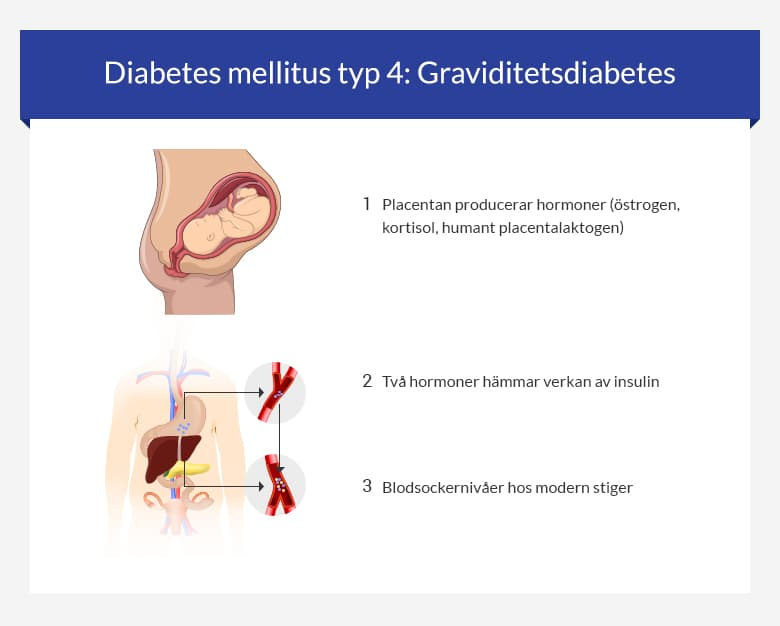 Diabetes mellitus typ 4